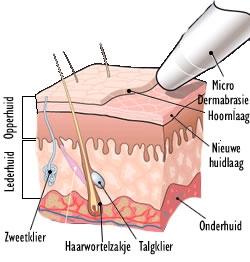 Behandeling Microdermabrasie